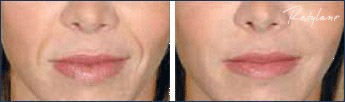 Restylane before and after